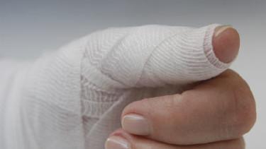 Verletzte Hand - Wenn ein Unfall passiert, sollten Sie gut versichert sein! © Udo Kroener, Fotolia