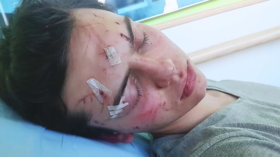 Roman erlitt bei dem Unfall schwere Verletzungen. © Radspieler, AK Stmk